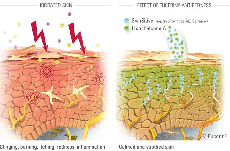 Illustration des effets des formulations Eucerin AntiROUGEURS